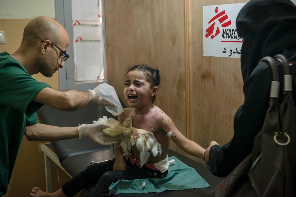 "Mina, 4, burned in the chest during the bombing. After 50 days of ""protective edge"" operation started July 8, 2014, a cease-fire was declared on August 26 in Gaza. In addition to the material destruction, the death toll is particularly heavy with more than 2,000 casualties, including about a quarter of children, and more than 10,000 wounded. Medical needs remain very high, especially in terms of postoperative care, rehabilitation and mental health. MSF supports the burn unit of Shifa Hospital and runs a clinic postoperative care in central Gaza."